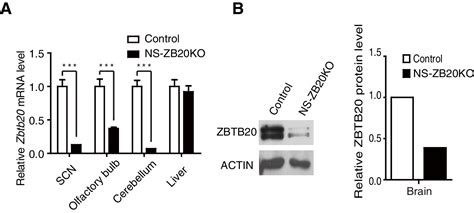 Figures and data in Loss of ZBTB20 impairs circadian