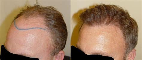 haartransplantation Archives - Beauty-Tipps